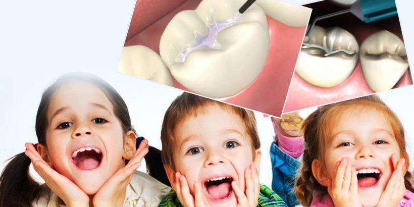 силанизиране на детски зъби