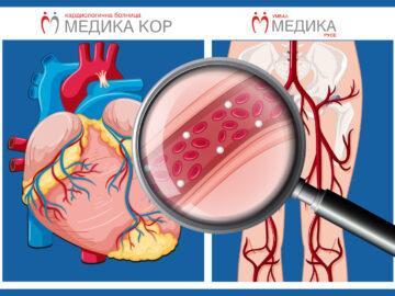 """Продължение на кампанията за чисти кръвоносни съдове в """"Медика"""""""